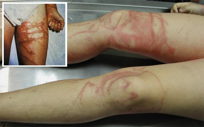 Le cicatrici lasciate dal tocco della Vespa di mare