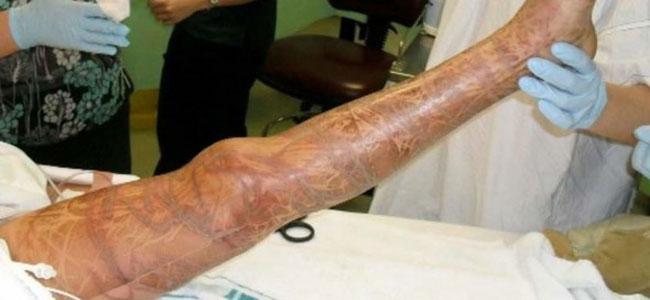 Una gamba completamente segnata dal tocco di una Vespa di mare