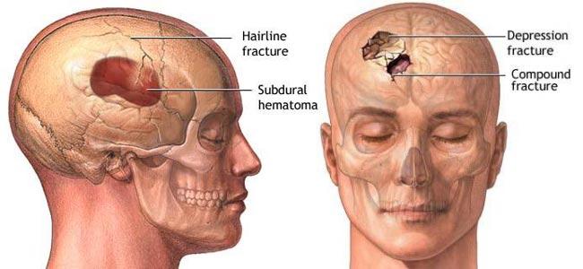Differenti tipologie di fratture del cranio
