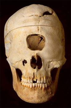 Il cranio di un ciclope